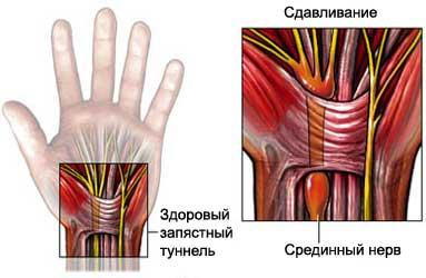 Кортизон за лечение на артрит- бгмама