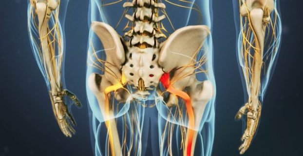 Sciatica - treatment of the disease. Symptoms and prevention of sciatica (sciatica neuralgia, lumbosacral radiculitis))