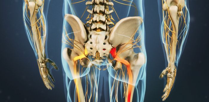 कटिस्नायुशूल - उपचार दु: ख. रोग और रोकने कटिस्नायुशूल के लक्षण (नसों का दर्द तंत्रिका sedalishtnogo, कटिस्नायुशूल))