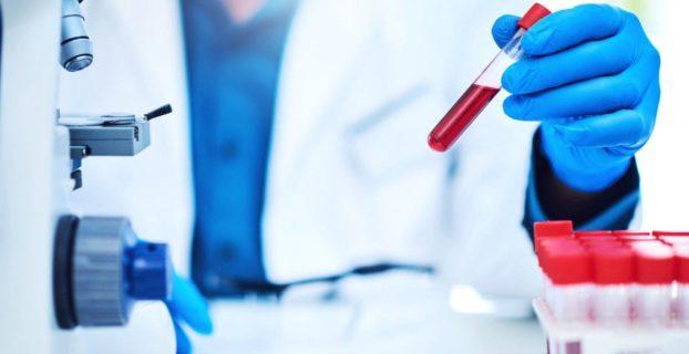 Анализ крови - как расшифровать, какие показатели считаются нормой?