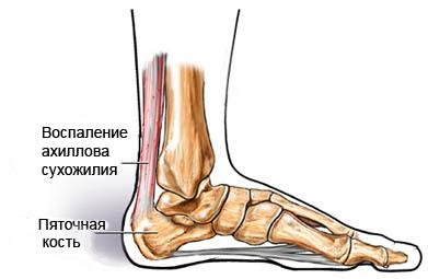 Тендинопатия ахиллова сухожилия - Ахиллова сухожилия тендинит ...