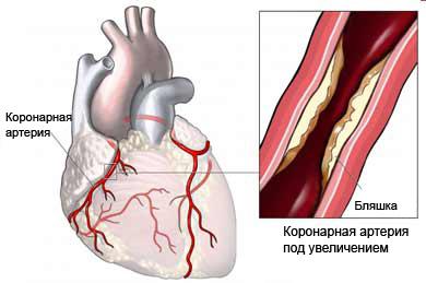 Острый коронарный синдром - Нестабильная стенокардия - Описание ...