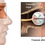 Тонометрия - Измерение внутриглазного давления (ВГД)