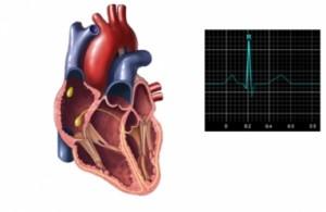 Амбулаторный кардиоконтроль