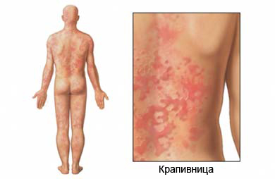 аллергия на арахис фото