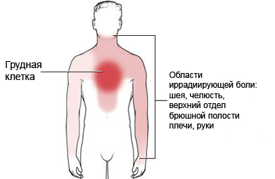 20 неделя беременности резкие боли в животе