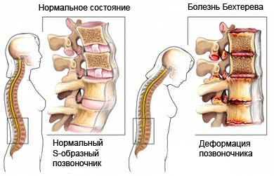 Анкилозирующий спондилит - Болезнь Бехтерева - Описание ...