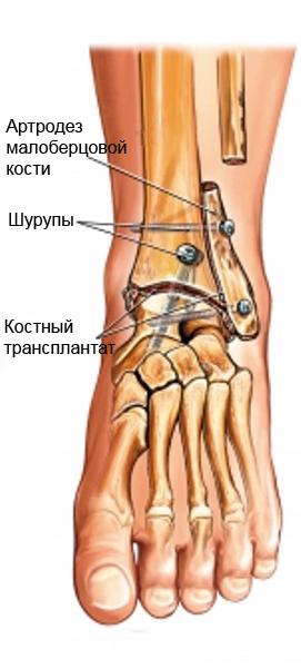 Операция на голеностопном суставе реактивному артриту коленных суставов