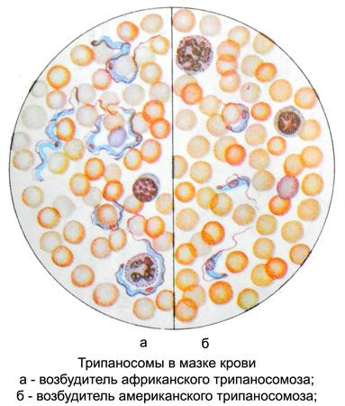 как обнаружить паразитов в организме