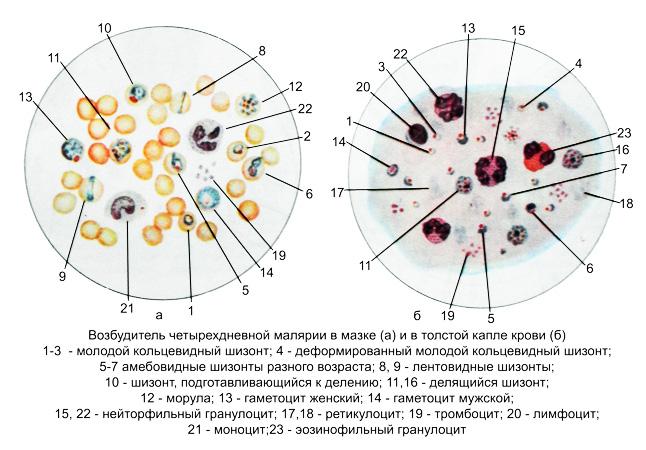 анализ на паразиты в организме человека инвитро