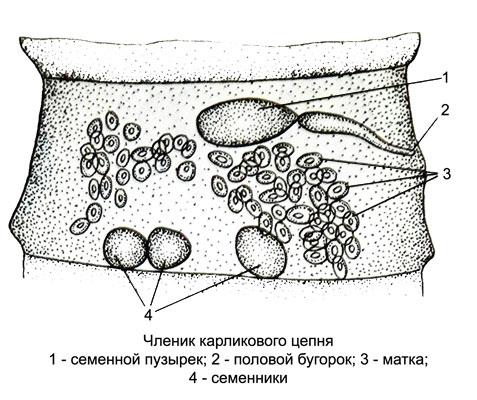 черви в мозгу человека фото