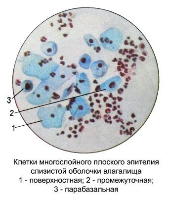 epiteliy-vistilayushiy-vlagalishe-nazivaetsya