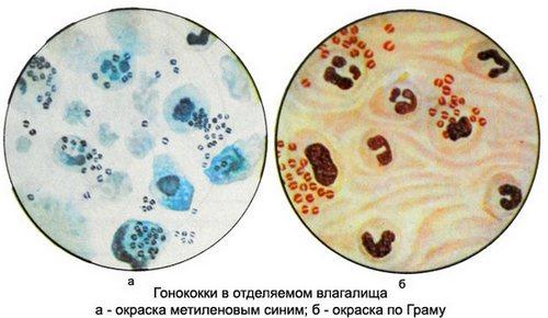 viyavili-stafilokokki-vo-vlagalishe