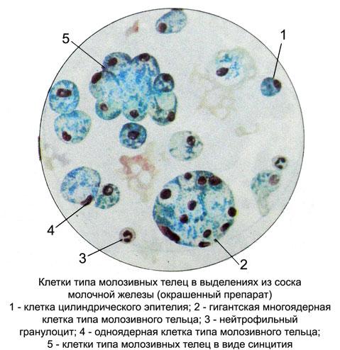 молочная железа в эпителии обнаружили голые ядра-оз1