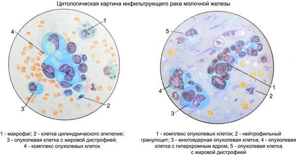 Единичные раковые клетки цитология молочной железы