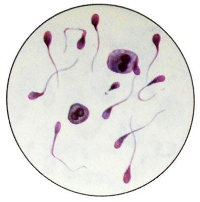 Как лечить патологическую форму сперматозоидов