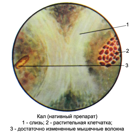 небольшое количество клеток цилиндрического эпителия