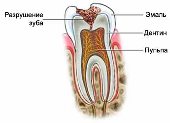 После пломбирования зубов плохо