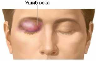 как снять отек с гемотомы глаза изготавливаются использованием