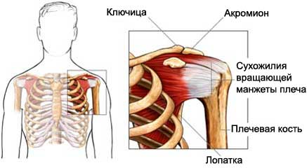 Тендинопатия плеча - Тендинит сухожилия двуглавой мышцы плеча ...