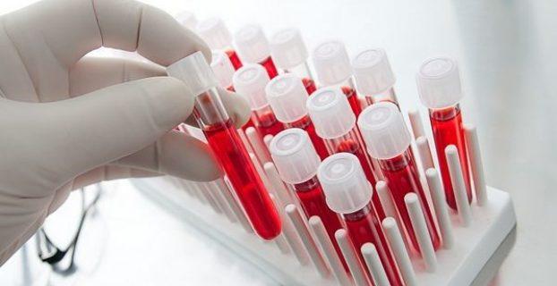 Аналих крови человека