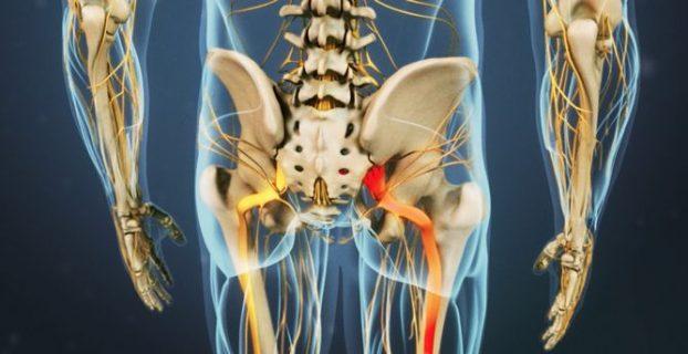 Sciatica - טיפול במחלה. תסמינים ומניעת של נשית (sciatica neuralgia, radiculitis lumbosacral))
