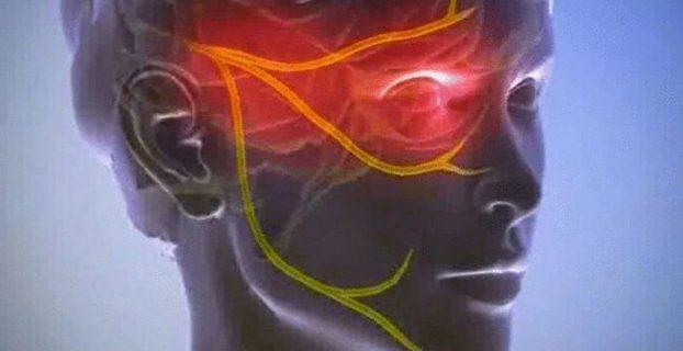 الألم العصبي - أي نوع من المرض ، يسبب؟ وصف والأعراض والوقاية من الألم العصبي